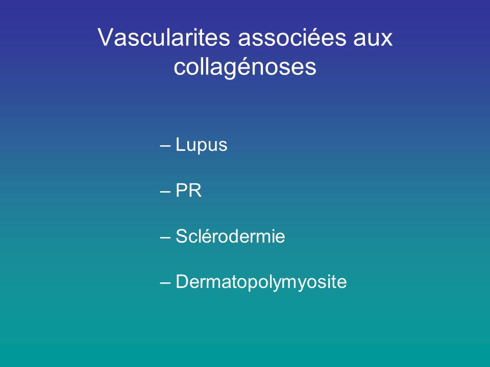 Vascularites associées aux collagénoses