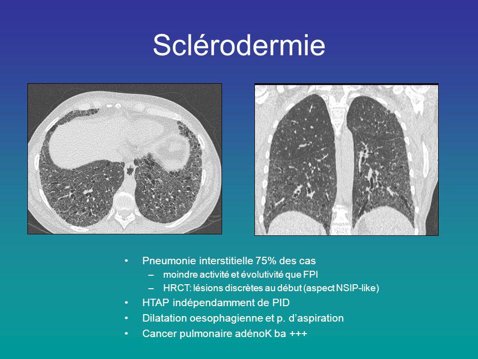 Sclérodermie Pneumonie interstitielle 75% des cas