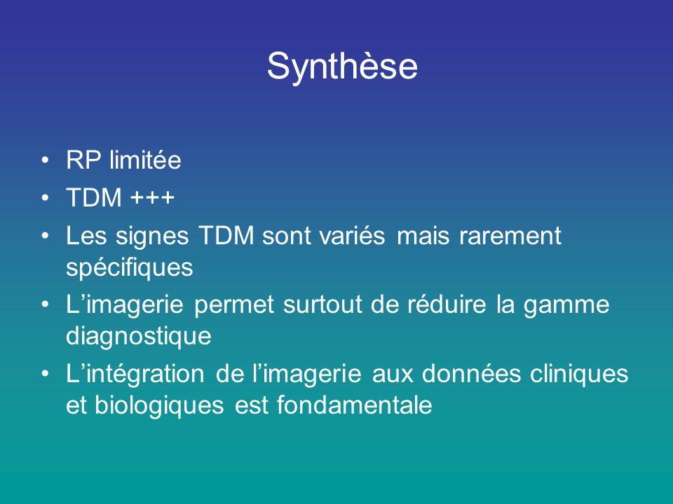 Synthèse RP limitée TDM +++