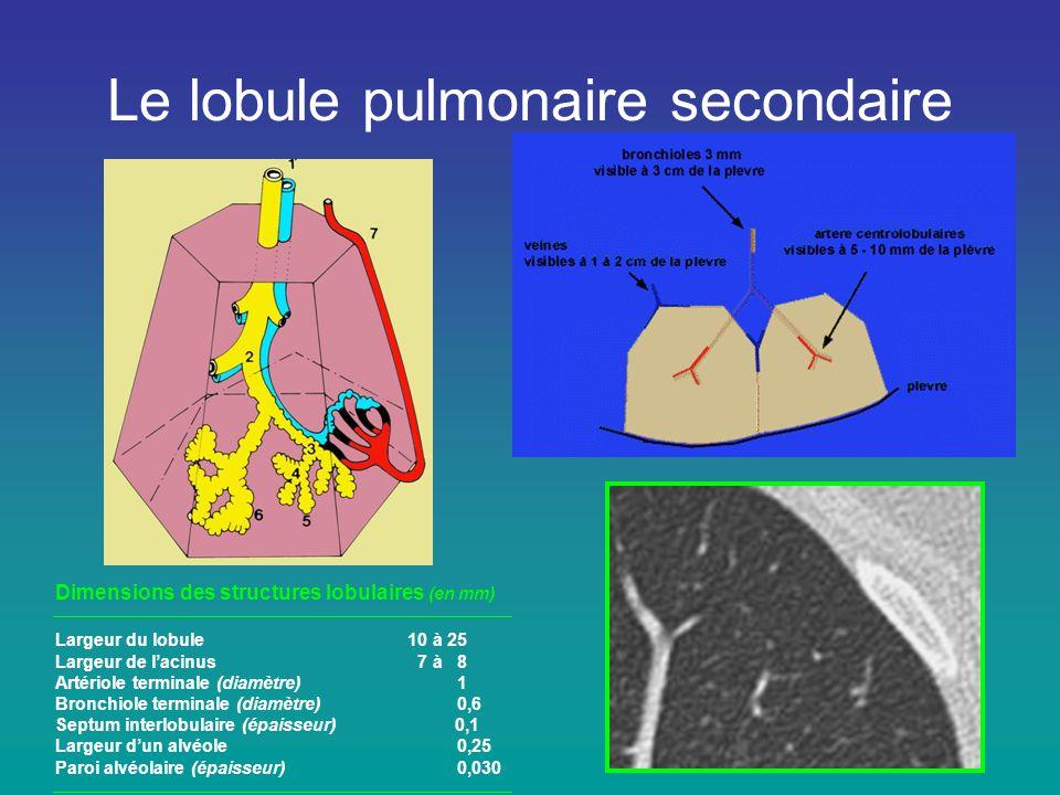 Le lobule pulmonaire secondaire