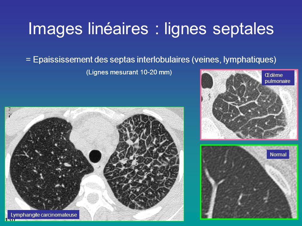 Images linéaires : lignes septales