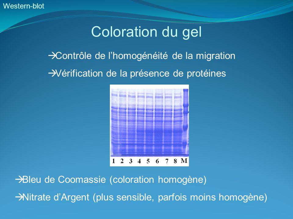 Coloration du gel Contrôle de l'homogénéité de la migration