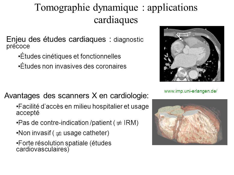 Tomographie dynamique : applications cardiaques