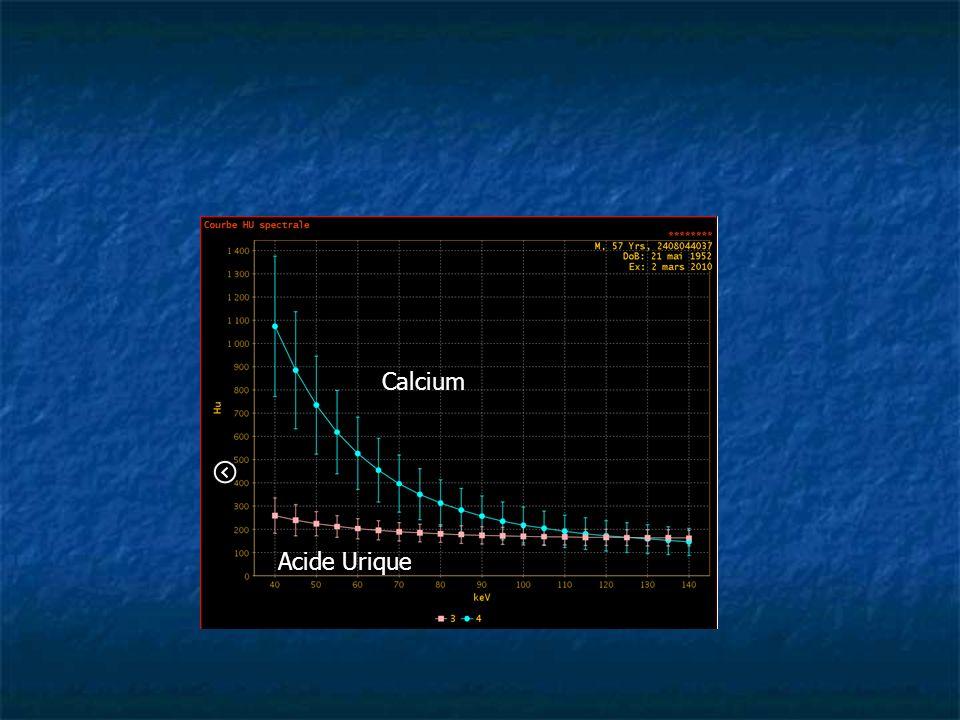 Calcium Acide Urique