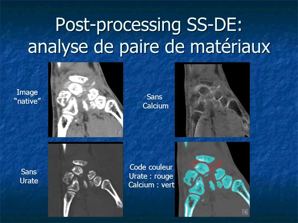Post-processing SS-DE: analyse de paire de matériaux
