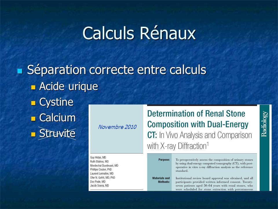 Calculs Rénaux Séparation correcte entre calculs Acide urique Cystine