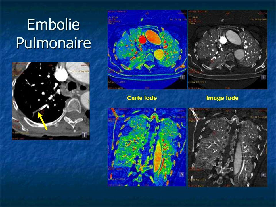 Embolie Pulmonaire Carte Iode Image Iode