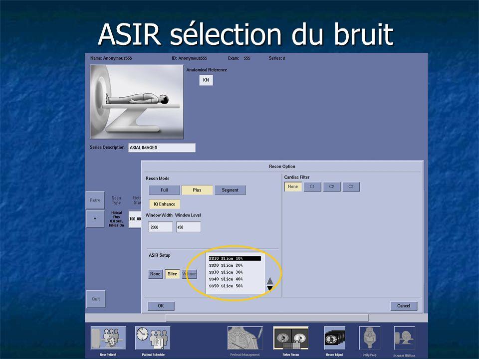 ASIR sélection du bruit