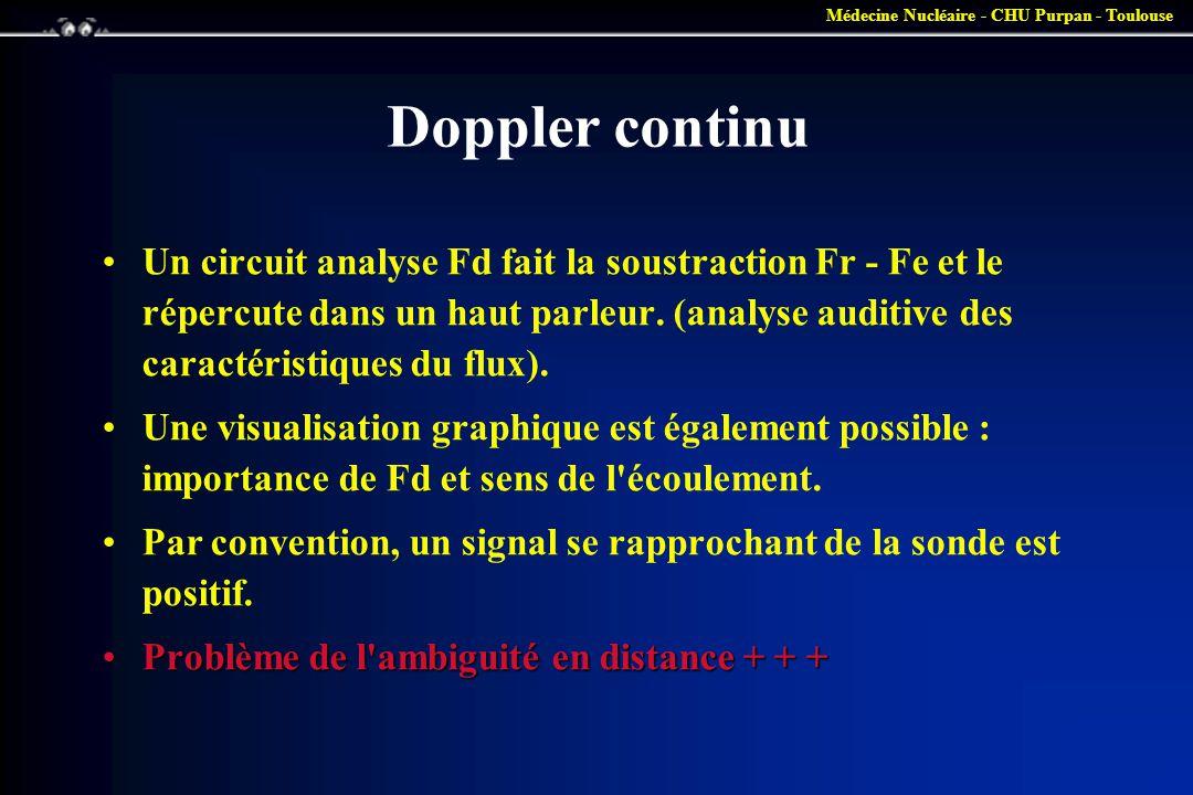 Doppler continu