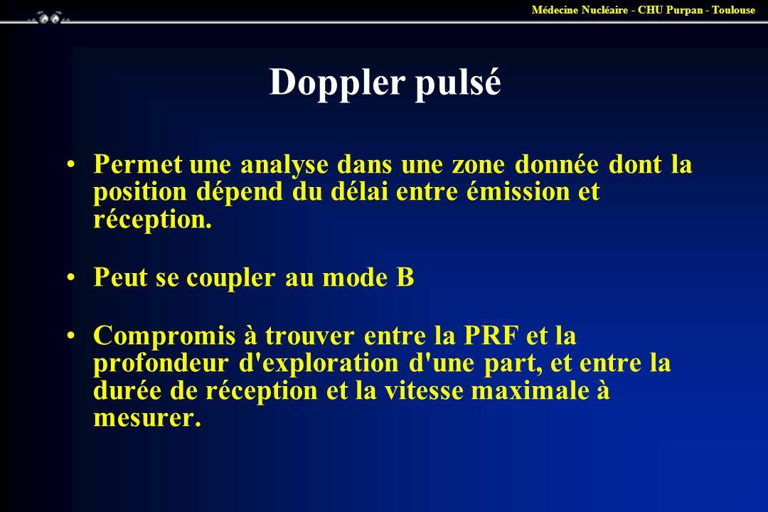 Doppler pulsé Permet une analyse dans une zone donnée dont la position dépend du délai entre émission et réception.