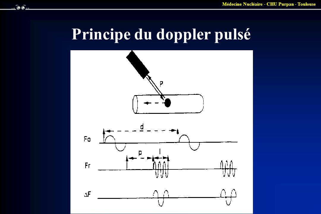 Principe du doppler pulsé