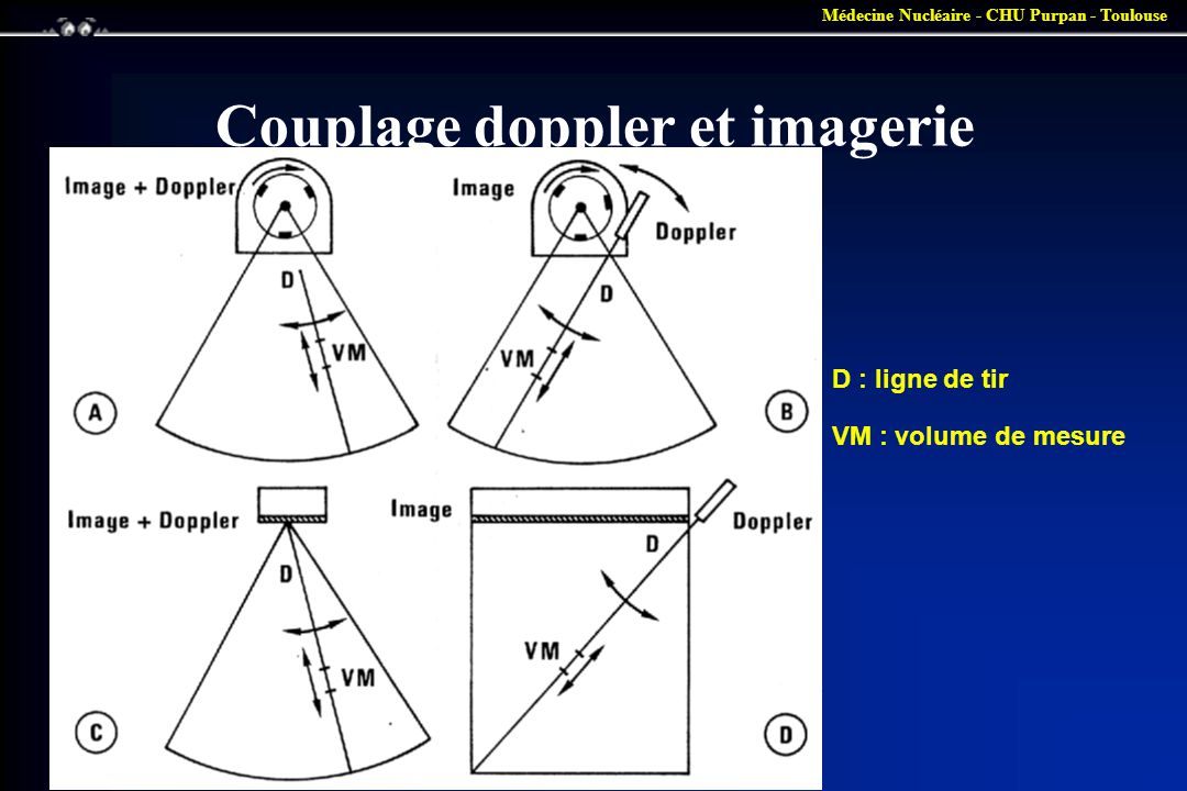 Couplage doppler et imagerie