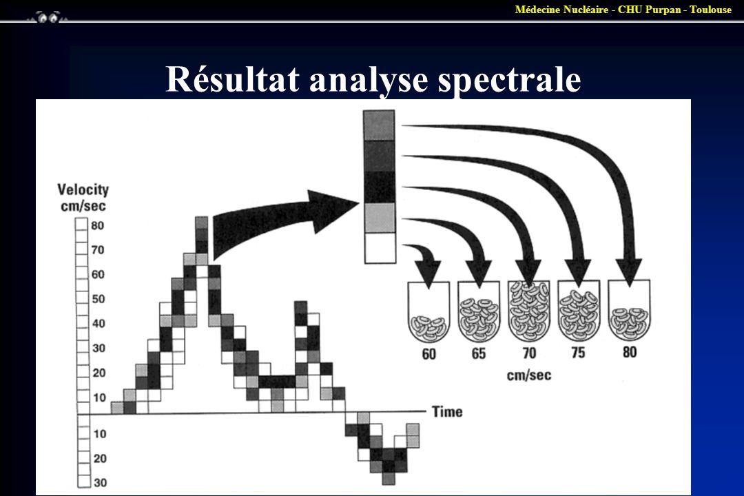 Résultat analyse spectrale