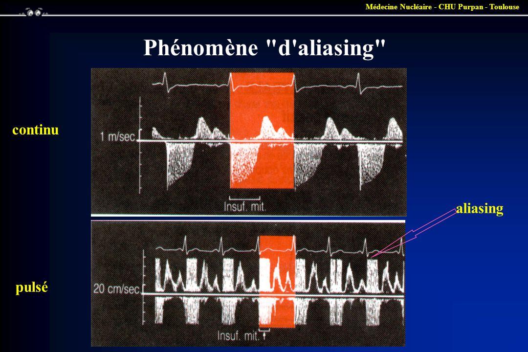 Phénomène d aliasing continu aliasing pulsé