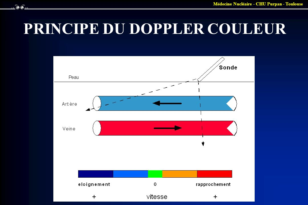 PRINCIPE DU DOPPLER COULEUR