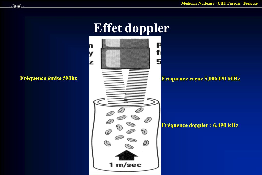 Effet doppler Fréquence émise 5Mhz Fréquence reçue 5,006490 MHz