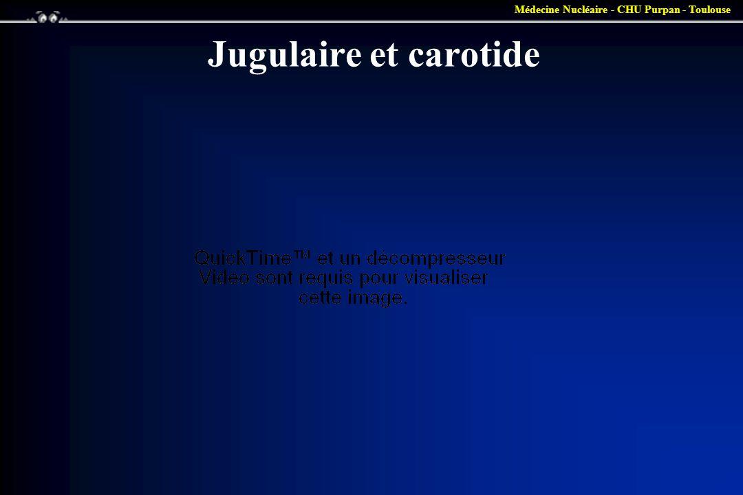 Jugulaire et carotide