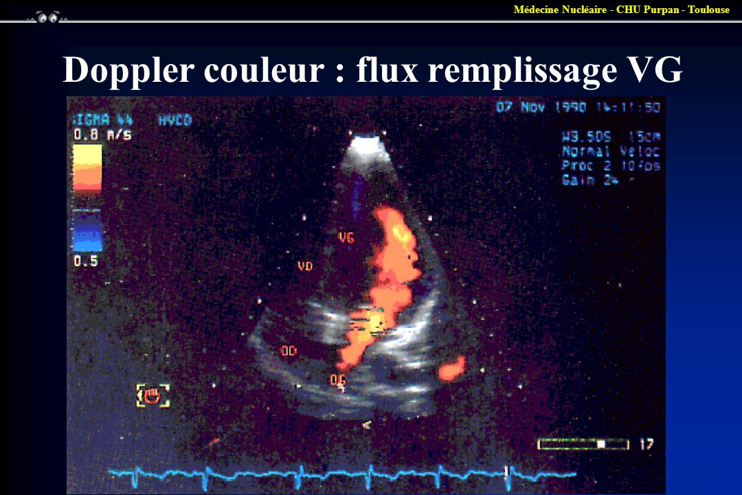 Doppler couleur : flux remplissage VG