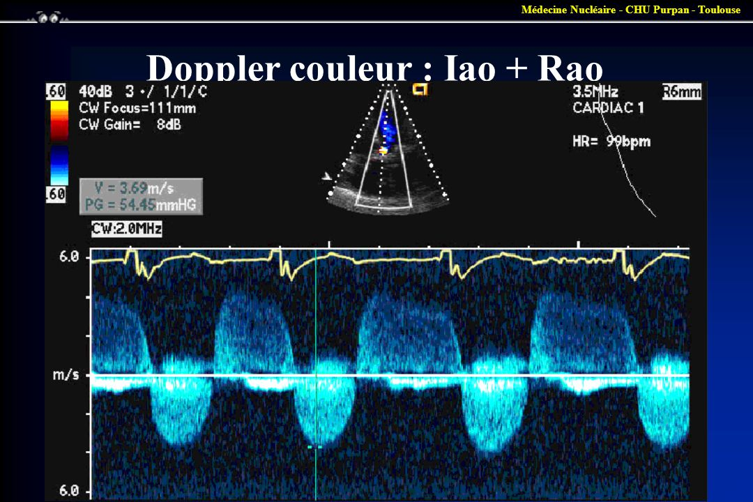 Doppler couleur : Iao + Rao