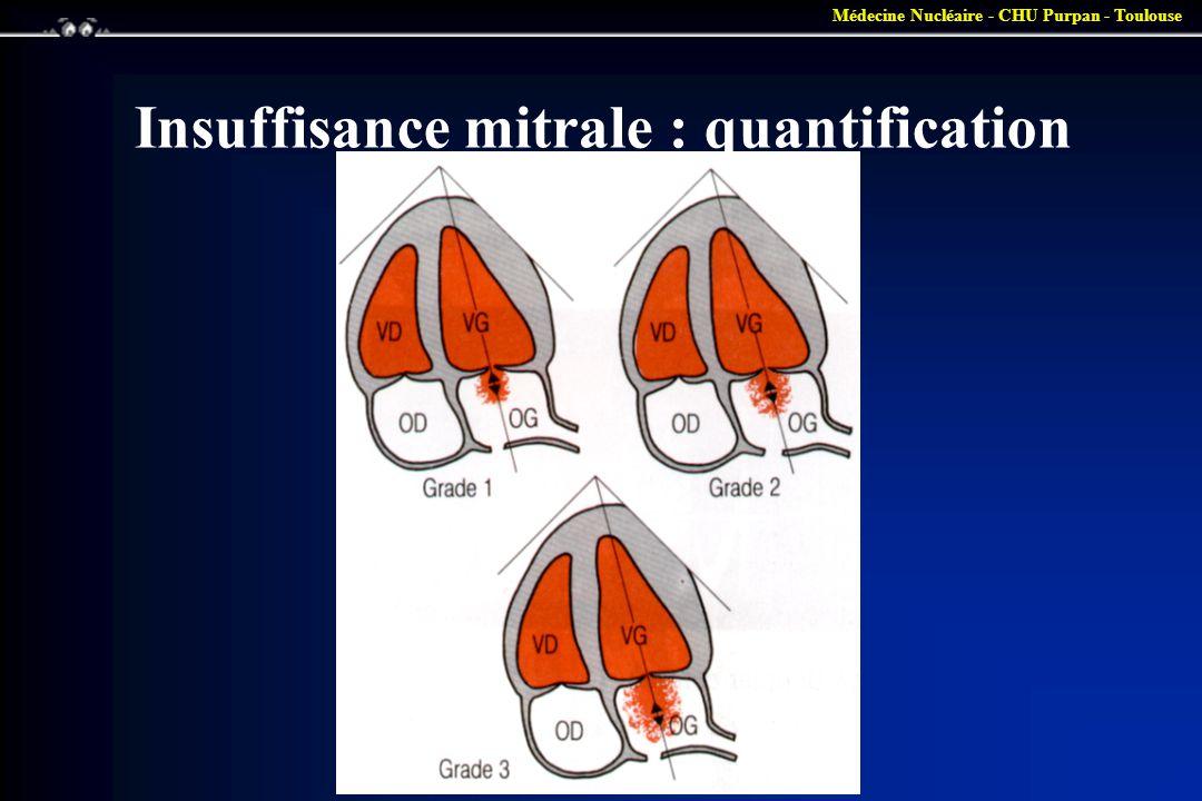 Insuffisance mitrale : quantification