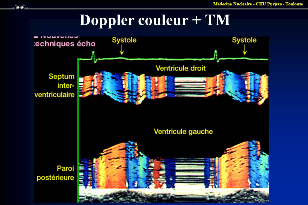 Doppler couleur + TM