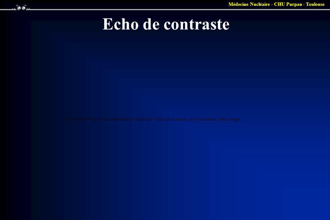 Echo de contraste