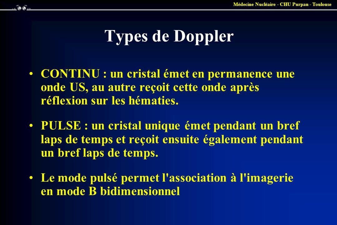 Types de Doppler CONTINU : un cristal émet en permanence une onde US, au autre reçoit cette onde après réflexion sur les hématies.