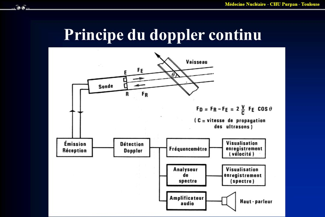 Principe du doppler continu