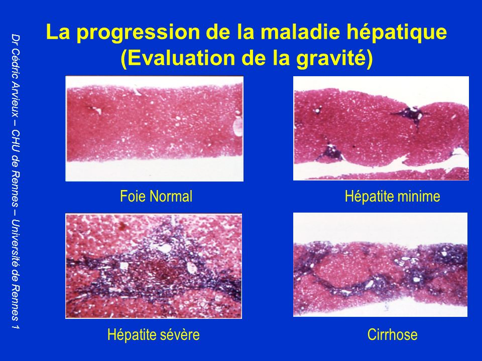 La progression de la maladie hépatique (Evaluation de la gravité)