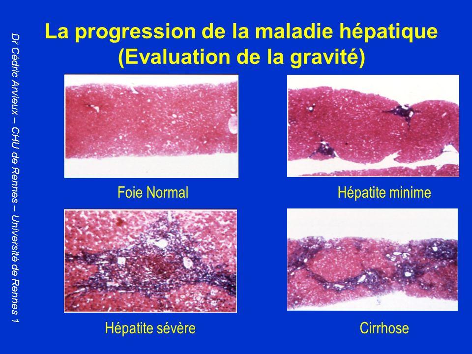 La progression de la maladie hépatique (Evaluation de la gravité)