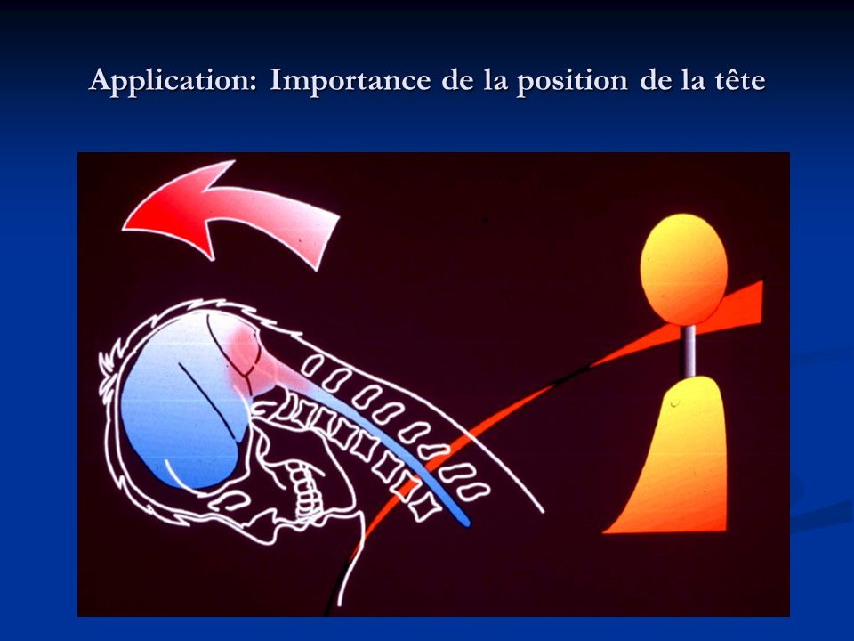 Application: Importance de la position de la tête