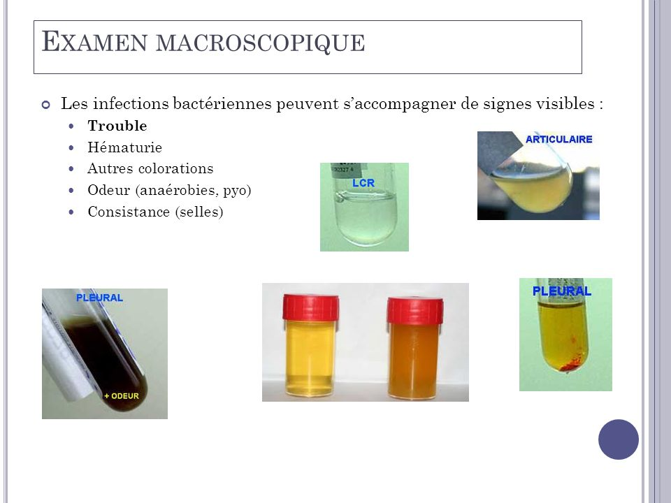 Examen macroscopique Les infections bactériennes peuvent s'accompagner de signes visibles : Trouble.