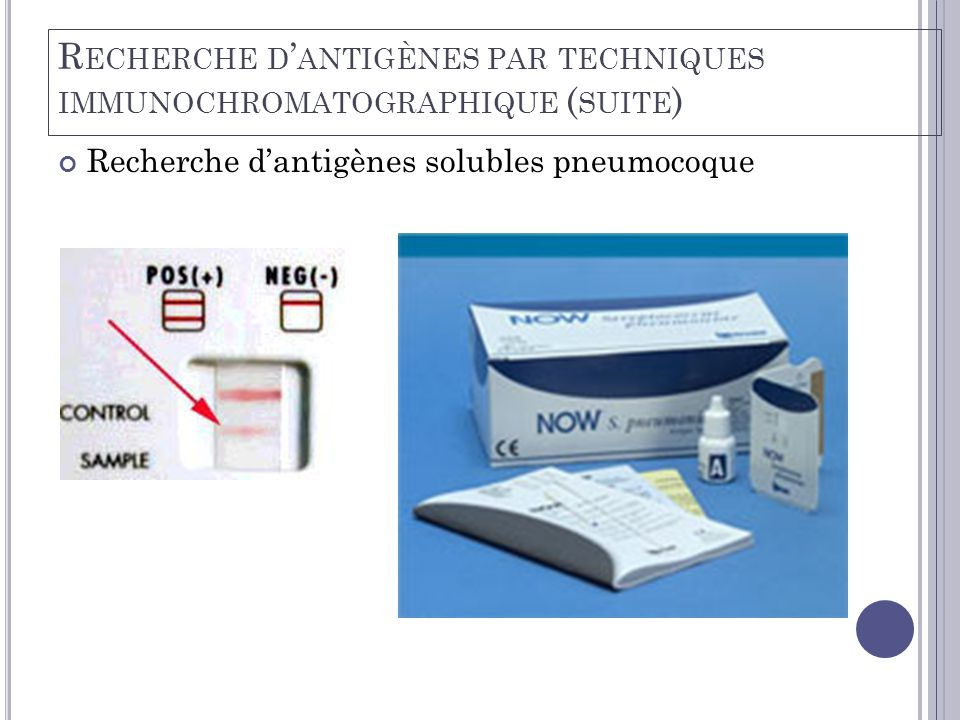 Recherche d'antigènes par techniques immunochromatographique (suite)