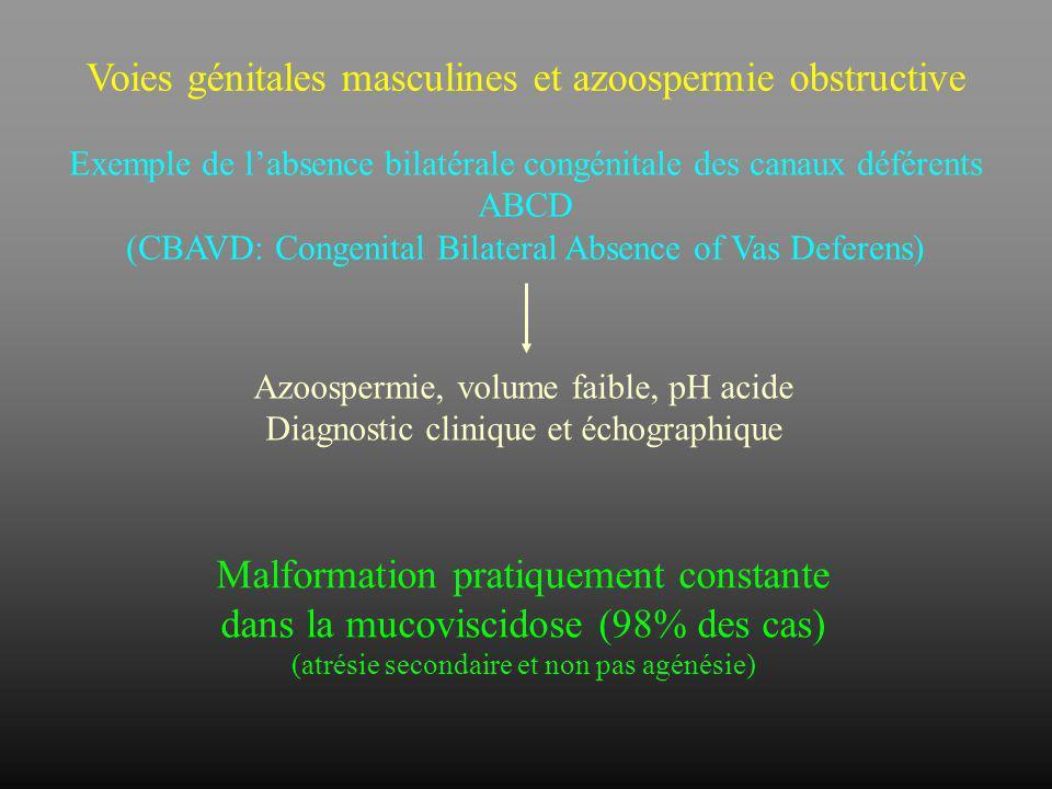 Voies génitales masculines et azoospermie obstructive