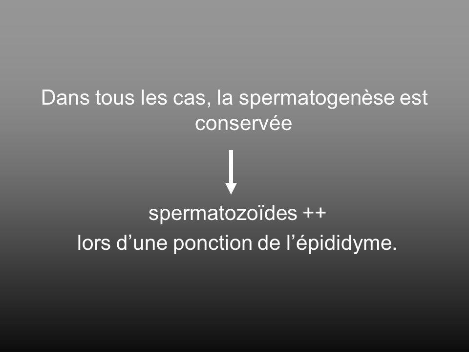 Dans tous les cas, la spermatogenèse est conservée
