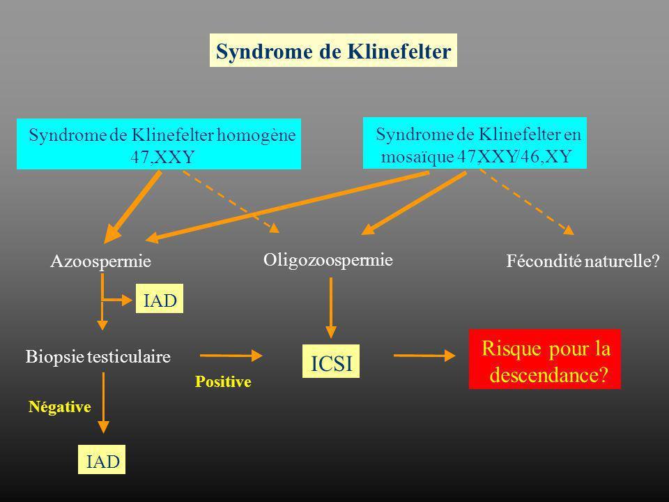 Syndrome de Klinefelter
