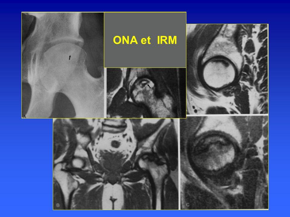 ONA et IRM