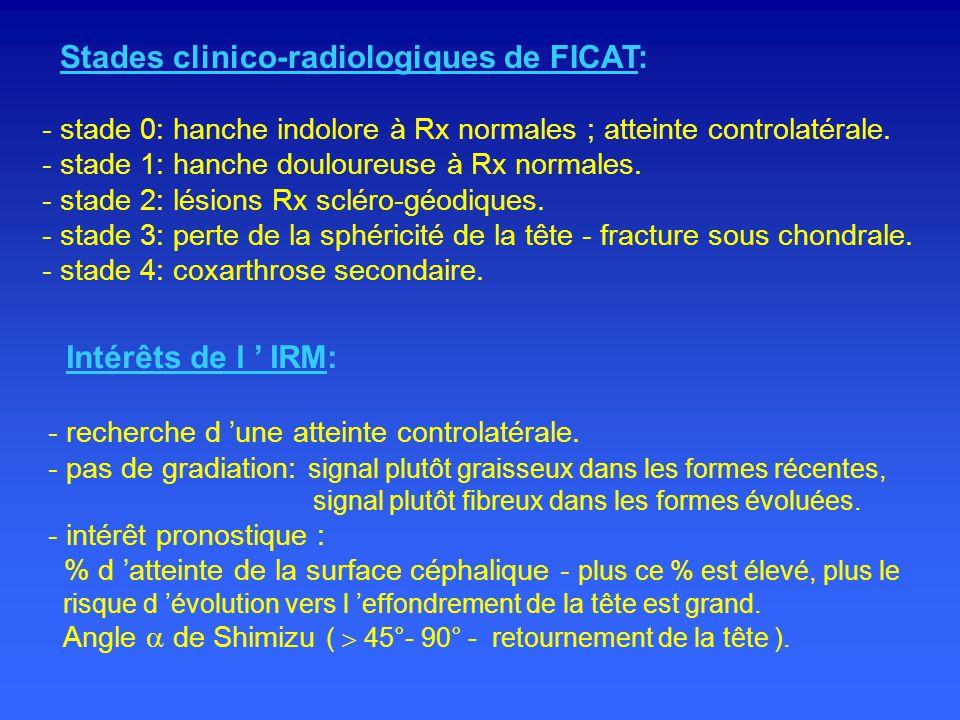 Stades clinico-radiologiques de FICAT: