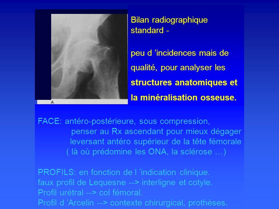 Bilan radiographique standard -