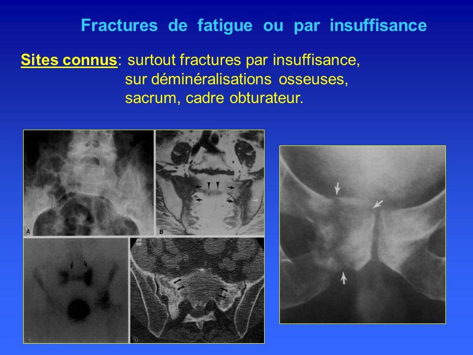 Fractures de fatigue ou par insuffisance