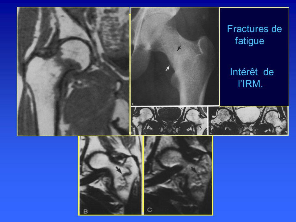 Fractures de fatigue Intérêt de l'IRM.