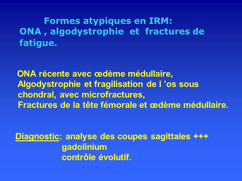 ONA , algodystrophie et fractures de fatigue.
