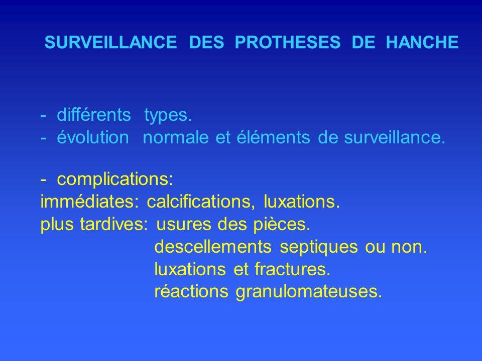 - évolution normale et éléments de surveillance. - complications:
