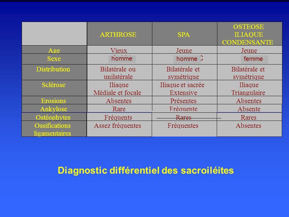 Diagnostic différentiel des sacroiléites