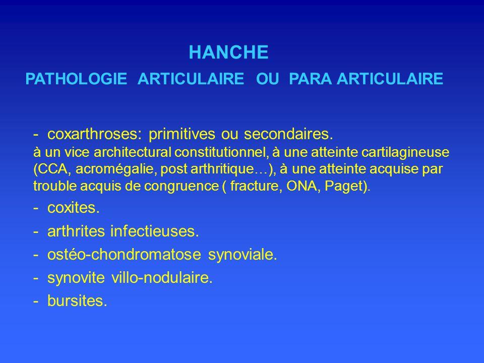HANCHE PATHOLOGIE ARTICULAIRE OU PARA ARTICULAIRE