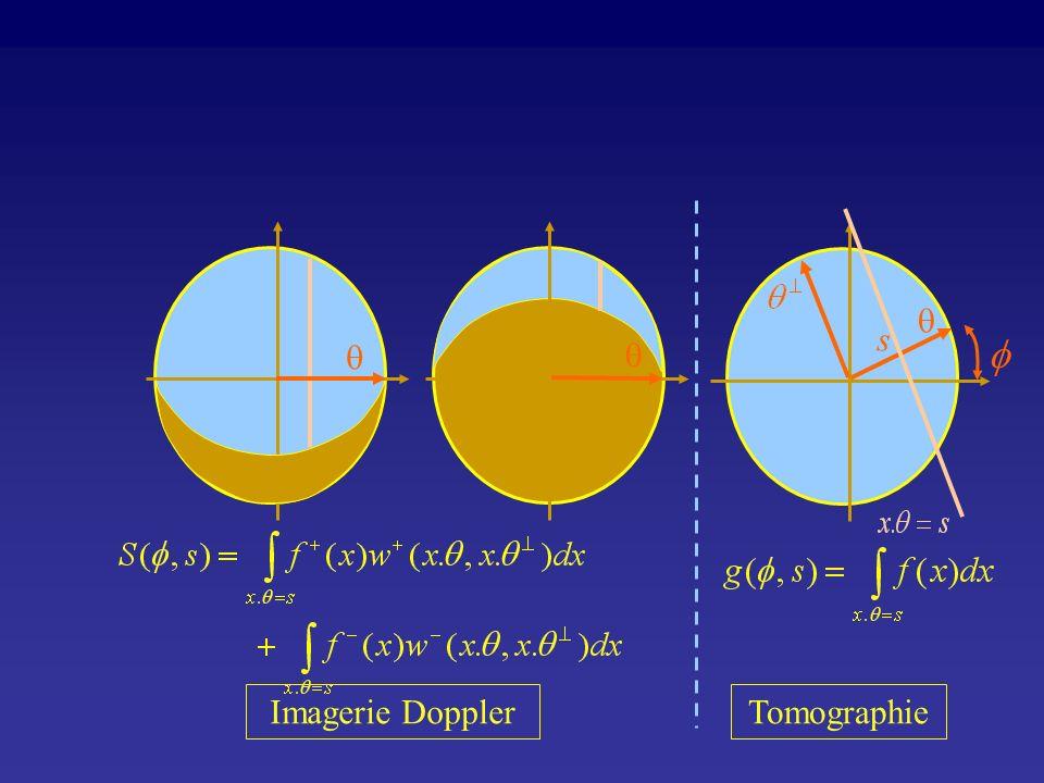 f q s q q Imagerie Doppler Tomographie