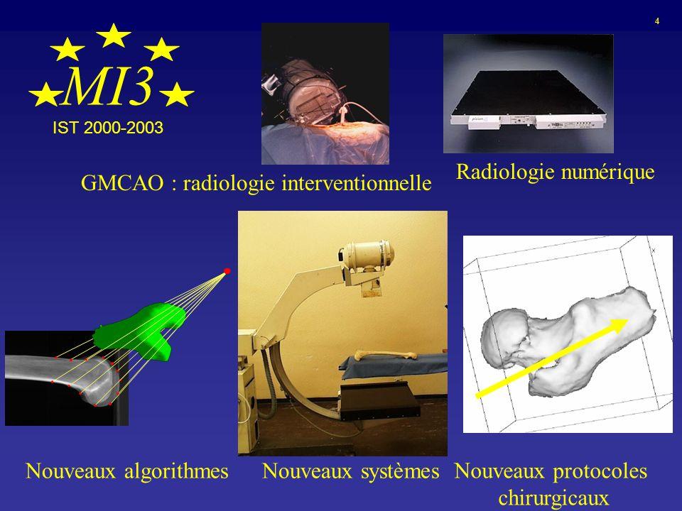 MI3 Radiologie numérique GMCAO : radiologie interventionnelle