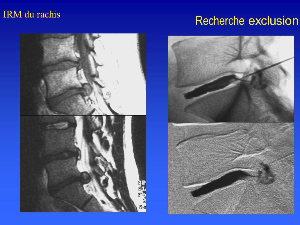 IRM du rachis IRM du rachis Recherche exclusion