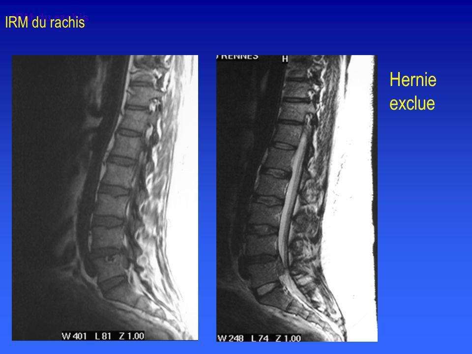 IRM du rachis IRM du rachis Hernie exclue