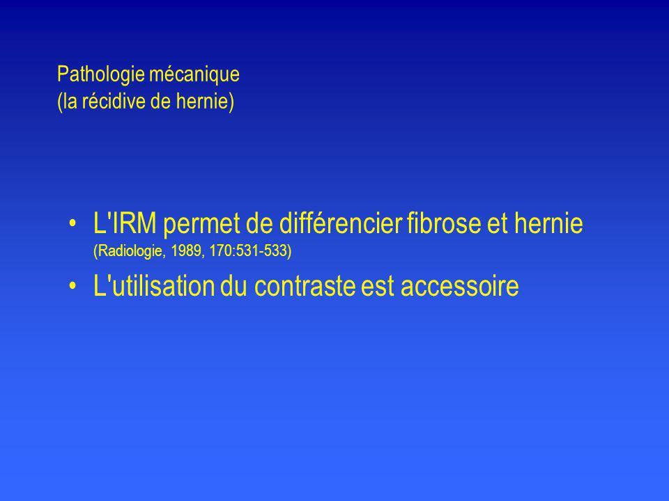 Pathologie mécanique (la récidive de hernie)